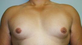 여유증/여성형가슴/여유증성형/유캔비성형외과